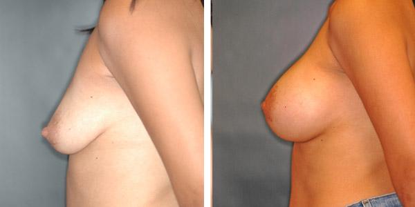 Breast_Augmentation_BarryHandlerMD_7