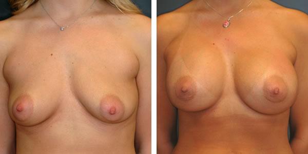 Breast_Augmentation_BarryHandlerMD_8