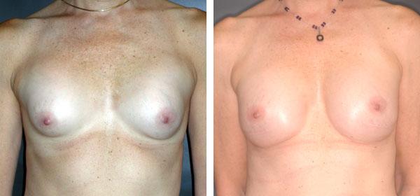 Breast_Augmentation_BarryHandlerMD_9
