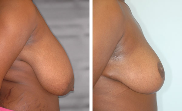Breast_Lift_Reduction_BarryHandlerMD_2