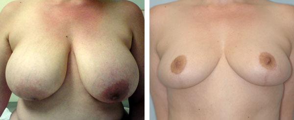 Breast_Lift_Reduction_BarryHandlerMD_3