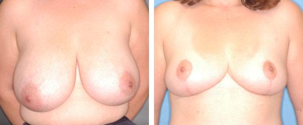 Breast_Lift_Reduction_BarryHandlerMD_5