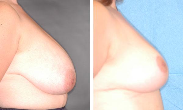 Breast_Lift_Reduction_BarryHandlerMD_6