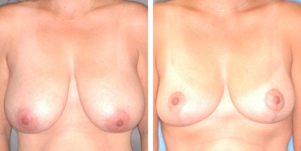 Breast_Lift_Reduction_BarryHandlerMD_8