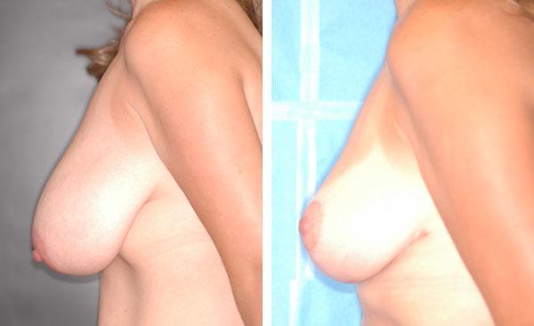 Breast_Lift_Reduction_BarryHandlerMD_9