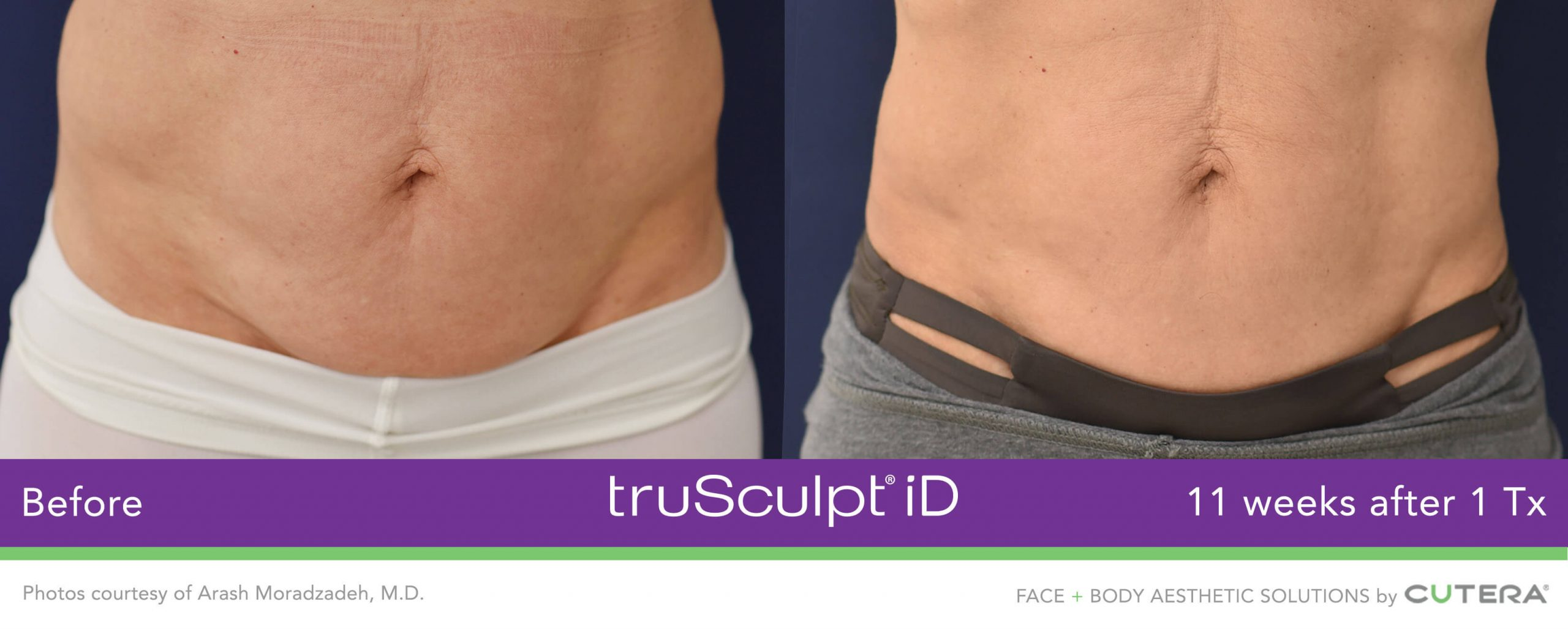 truSculpt-iD