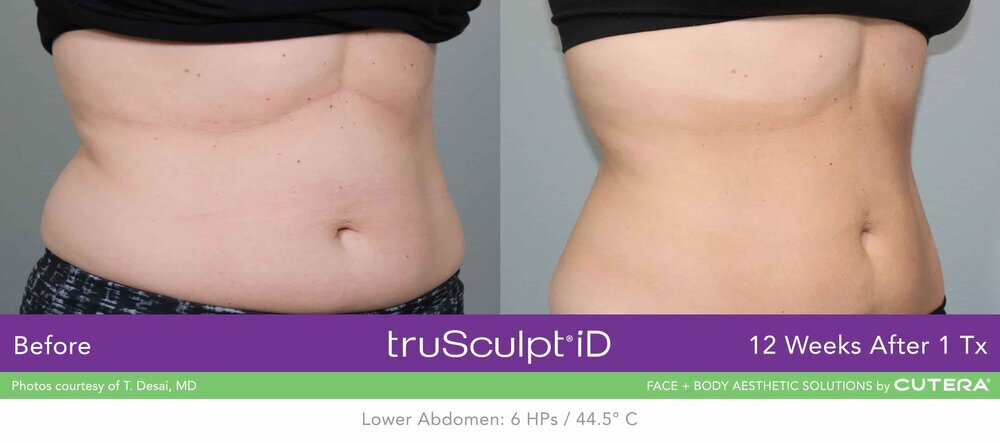 truSculpt-iD-stomach-before-after