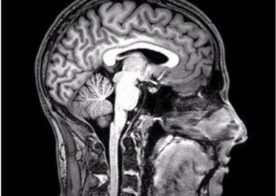 Novel Treatment to Protect against Neurodegenerative Inflammation in Parkinson's