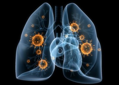 Novel Therapeutic Compounds for the Treatment of Pneumonic Infections