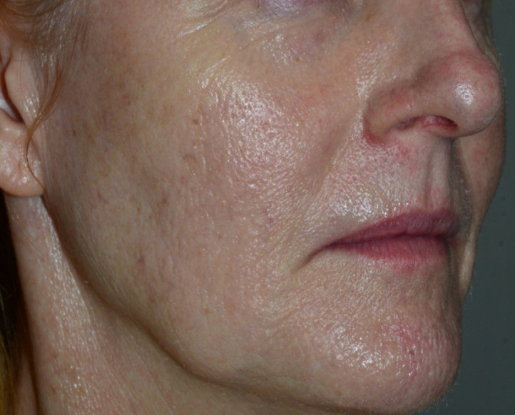 3 Mandelic Peels for Redness (After)