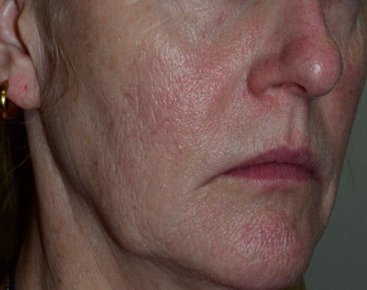 3 Mandelic Peels for Redness (Before)