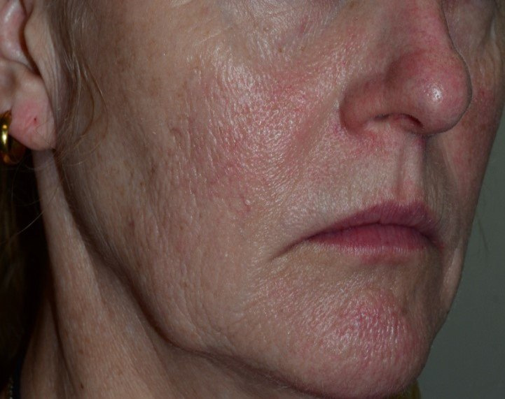 3 Mandelic Peels for Redness (Before)