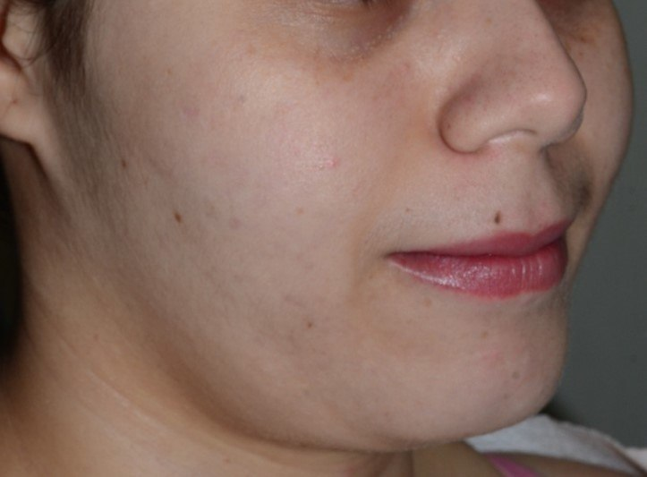 Salicylic acid peel X4 for Acne (After)
