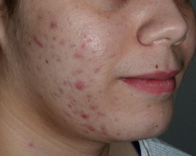 Salicylic acid peel X4 for Acne (Before)