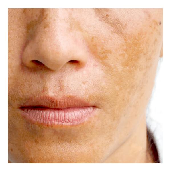 Discoloration / Melasma / Sun Spots