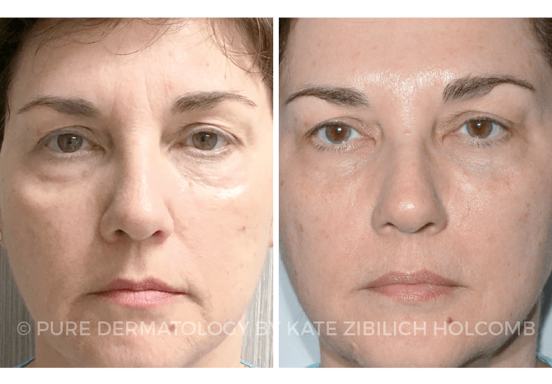 Injectable Fillers in New Orleans | Dr  Holcomb | Pure