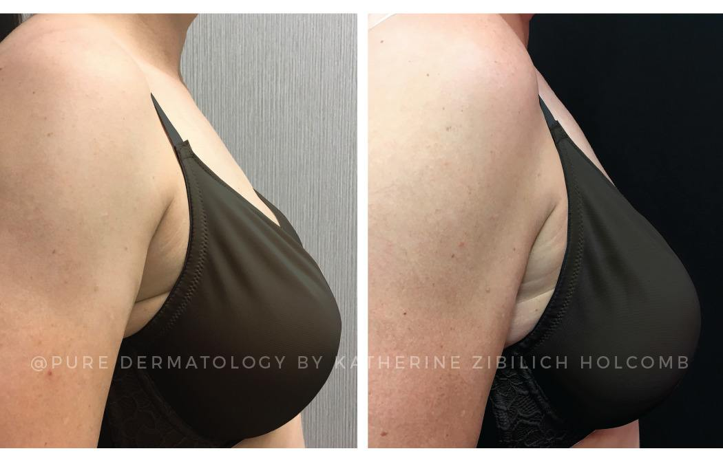 Kybella Solutions at Pure Dermatology New Orleans