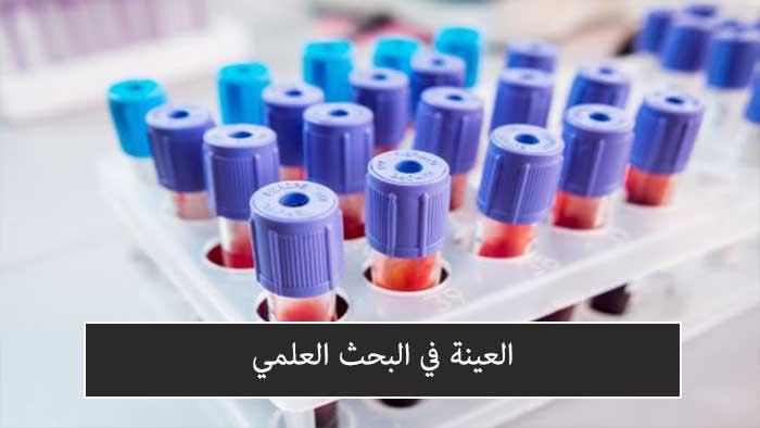 العينة في البحث العلمي