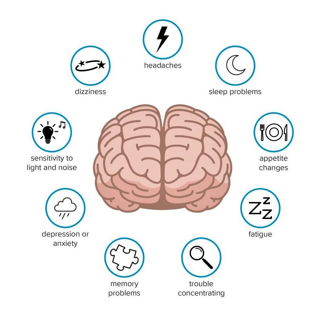 concussion infographic