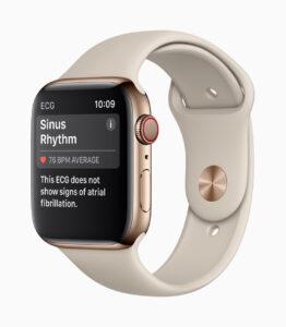 Apple-Watch-Series4-ECG-ChicDivaGeek