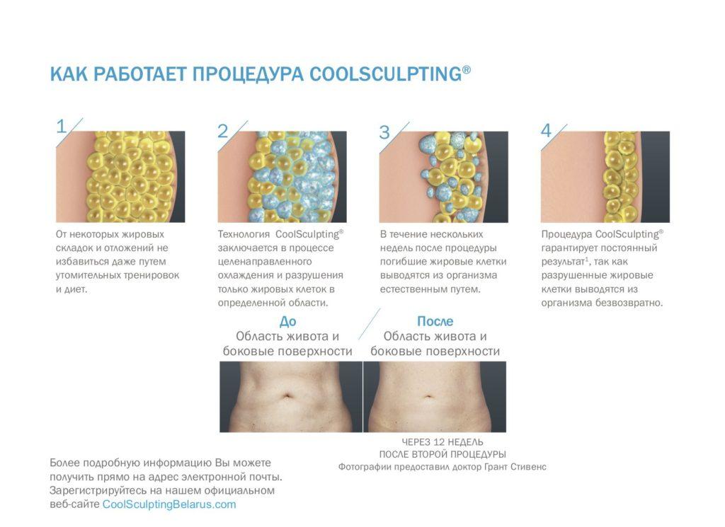 От некоторых жировых складок и отложений не избавиться даже путем утомительных тренировок и диет. Технология CoolSculpting® заключается в процессе целенаправленного охлаждения и разрушения только жировых клеток в определенной области. В течение нескольких недель после процедуры погибшие жировые клетки выводятся из организма естественным путем. Процедура CoolSculpting® гарантирует постоянный результат1, так как разрушенные жировые клетки выводятся из организма безвозвратно.