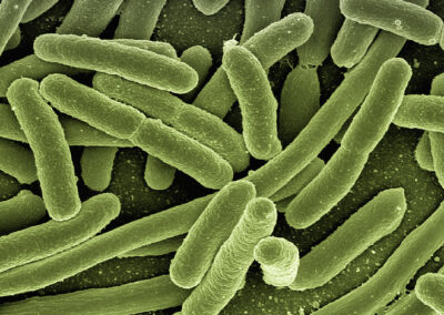 Anti-infective Antibacterial Compounds against Mycobacterium tuberculosis and other Mycobacterium Species
