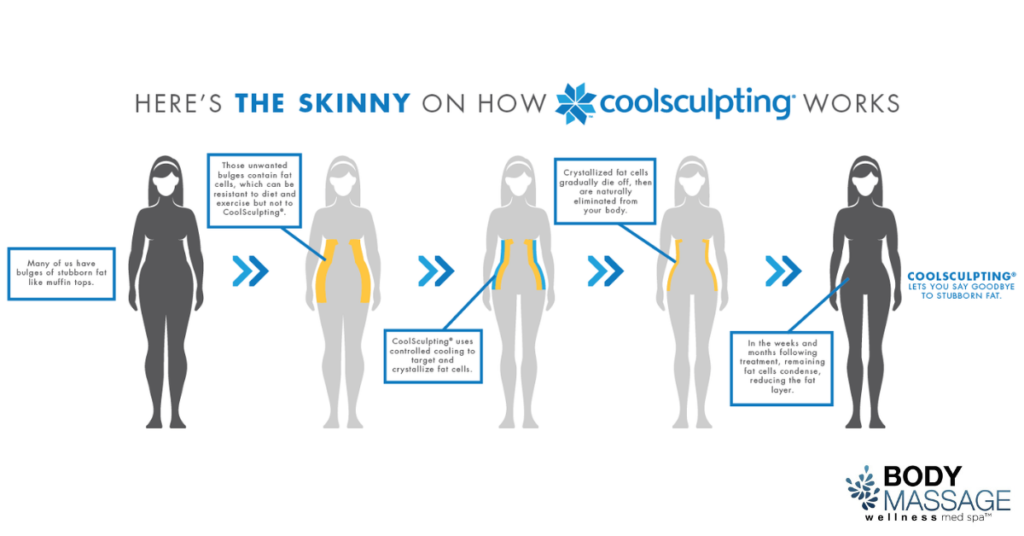How does CoolSculpting work in Denver, CO?