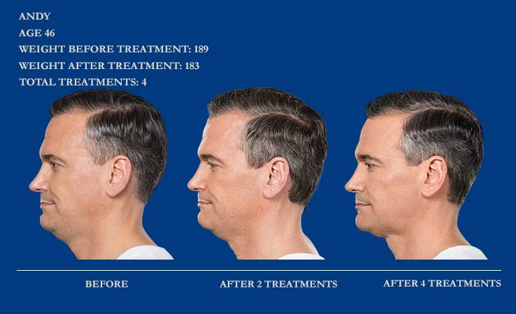Before & After Kybella for Sculpting Chin.