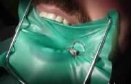 ¿por qué es cara la endodoncia?