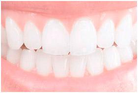 materiales dentales 1