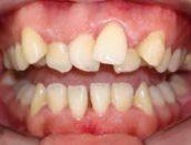 imagen de dentadura malocluida