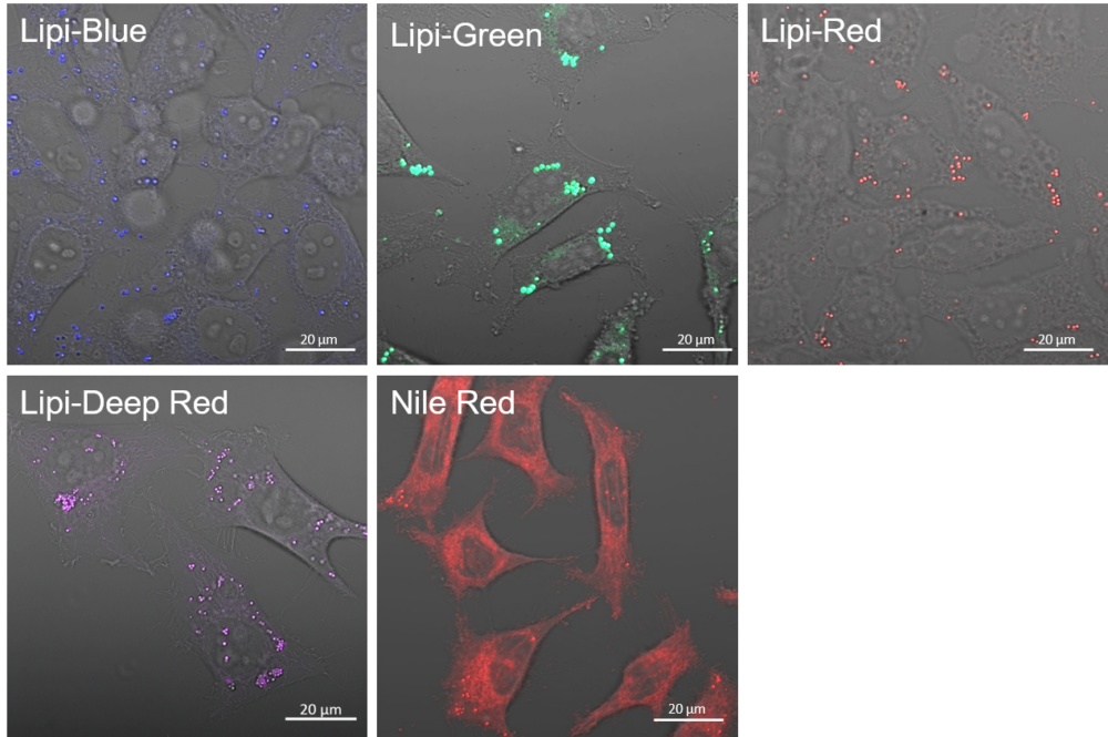 High Selectivity toward Lipid Droplet
