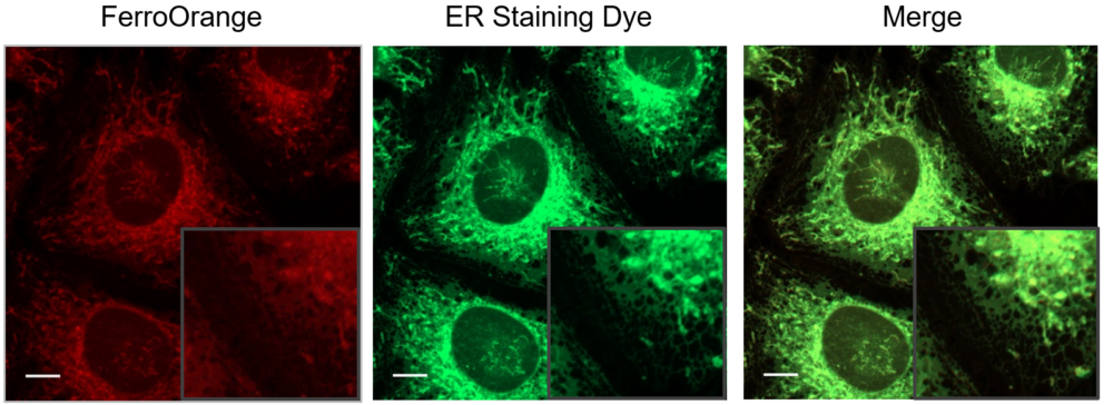 Co-staining with ER Staining Dye
