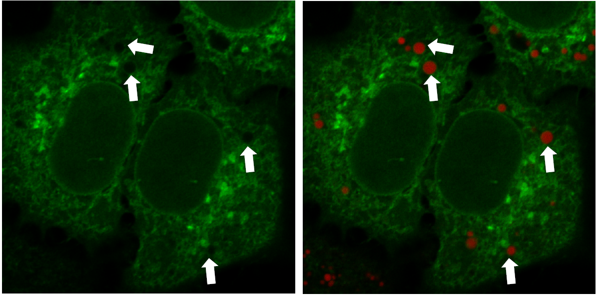 Multiple Staining: Lipi-Deep Red co-staining with GFP fluorescence in HeLa cells