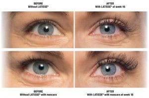 Latisse Eyes Before and After