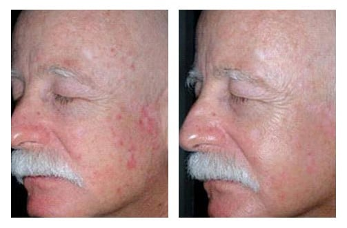 Photodynamic Therapy Before and After