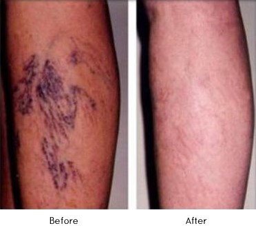 Spider Vein Treatment Before and After, Healthy Skin Centre