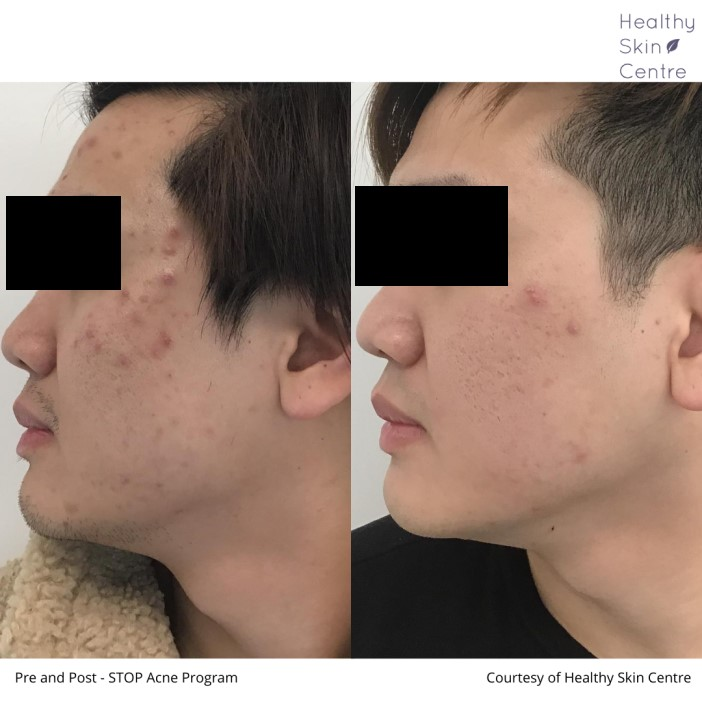 Stop_ACNE - Healthy Skin Centre