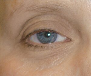 Lumiere After 6 Weeks - Healthy Skin Centre