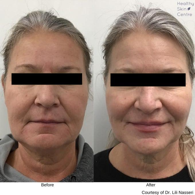 Dermal Filler 1, Healthy Skin Centre