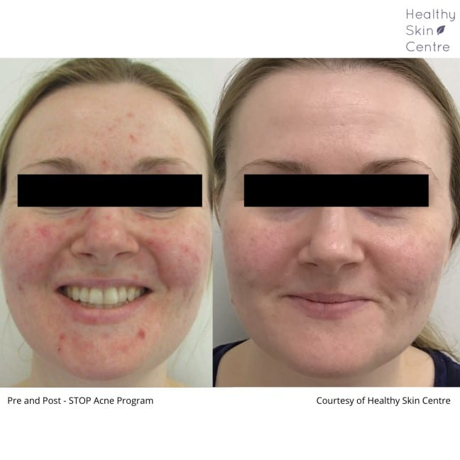 Stop Acne Female 1, Healthy Skin Centre