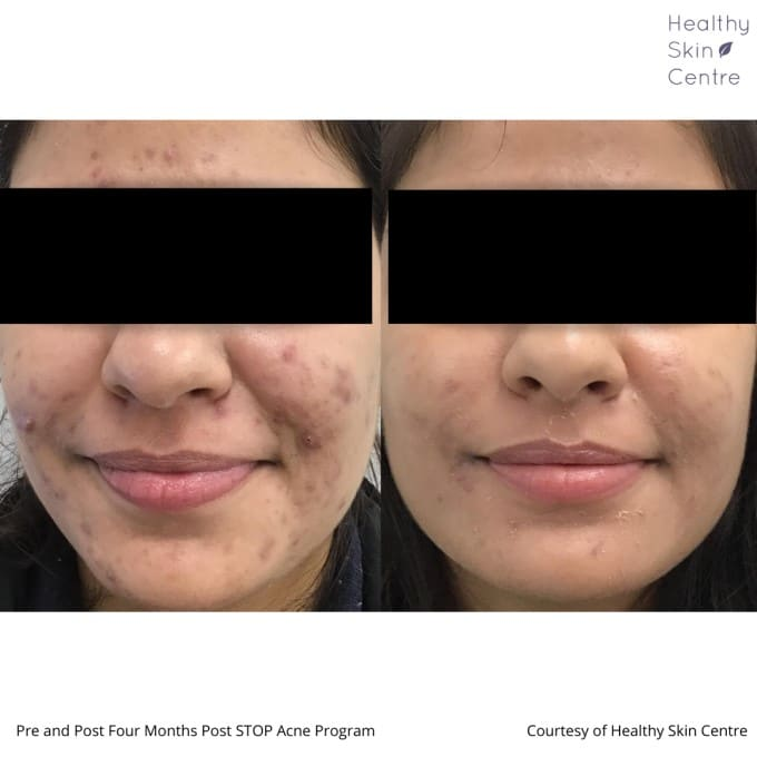 Stop Acne Female 2, Healthy Skin Centre