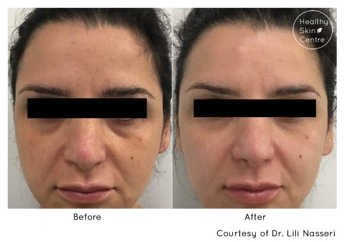 Dermal Filler Pre and Post, Healthy Skin Centre