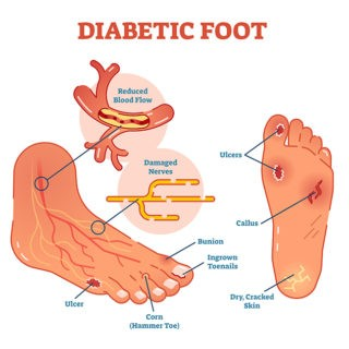 diabetes foot care specialists in podiatry