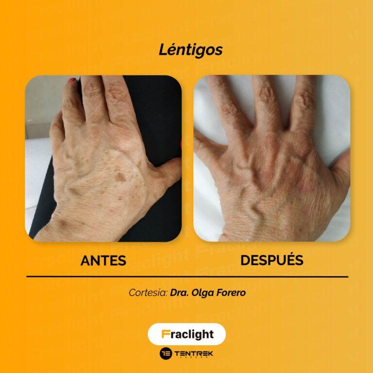 Dra Olga Forero_Mesa de trabajo 1 copia 6