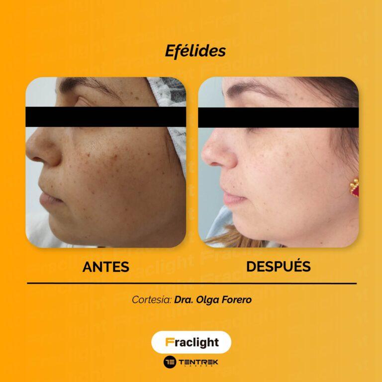 Dra Olga Forero_Mesa de trabajo 1 copia 6_Mesa de trabajo 1 copia 6