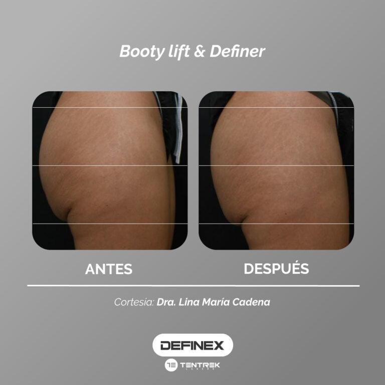 Resultados-Definex-6