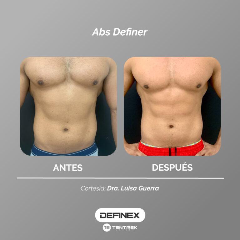 Plantilla-Resultados-Definex-LuisaGuerra