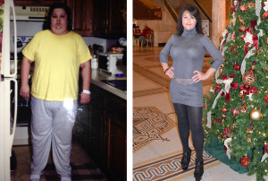 my gastric bypass