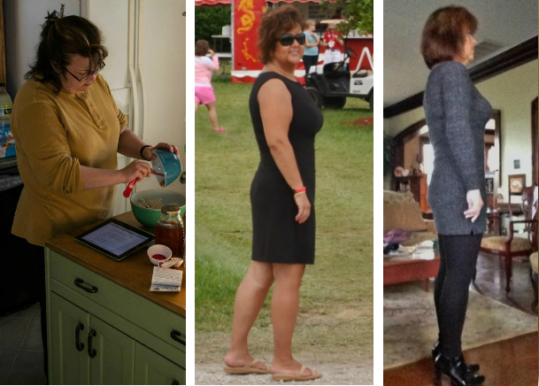 plastic surgery after weight loss